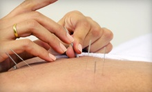 Acupuncture Consultation with One or Two Treatments at Cross Keys Acupuncture and Healing Arts (Up to 68% Off)