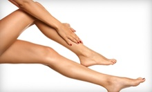 Six Laser Hair-Removal Treatments on an Extra-Small, Small, Medium, or Large Area at Metro Laser (Up to 88% Off)