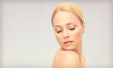 One or Three Microdermabrasion Facials at White Lake Family Health Services (Up to 77% Off)