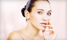 Consultation and Dysport or Botox at Skin Savvé (Up to 53% Off). Three Options Available.