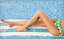 $598 for Four Lipodissolve Treatments at Body Allure ($1,600 Value)