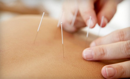 One Traditional Acupuncture Treatment or Two Facial Acupuncture Treatments at Troy Acupuncture Center (Up to 70% Off)