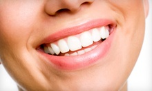 In-Office Teeth-Whitening Treatment for One or Two at Center For Dentistry (83% Off)