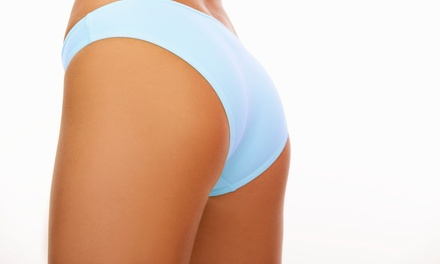 4, 8, or 10 Ultrasonic-Cavitation Body-Contouring Treatments at Nu Look MedSpa (Up to 75% Off)