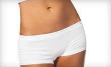 Three or Five 20-Minute I-Lipo Fat-Reduction Treatments at Flawless MedSpa (Up to 78% Off)