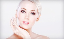 One, Two, or Three Photofacials at Redound Spa &amp; Aesthetics (Up to 67% Off)