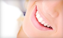 $49 for In-Office Teeth Whitening at Smile FX USA ($299 Value). Three Locations Available.