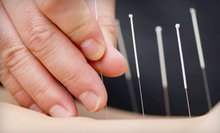 One, Two, or Three Acupuncture Treatments with Exam at Santa Cruz Core Fitness + Rehab (Up to 81% Off)