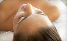 One or Three One-Hour Acupuncture Sessions at Longevity Health Center (Up to 70% Off)