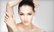 Six Laser Hair-Removal Sessions on a Small, Medium, or Large Area at All in One Laser (Up to 89% Off)