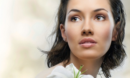 $109 for One Area of Botox at NuImage Medspa in Birmingham (Up to $250 Value)