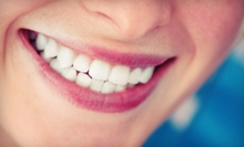 One or Two BleachBright Teeth-Whitening Treatments at Pacific Tanning (Up to 85% Off)