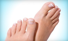 $299 for Complete Laser Toenail-Fungus Removal at Advanced Footcare ($795 Value)