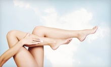 Two or Four Laser Spider-Vein Removal Treatments from Dr. Gregory P. Samano II DO PA (Up to 79% Off)