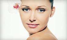 Two, Four, or Six Microdermabrasion Facials at Spa Organic Boosters (Up to 59% Off)