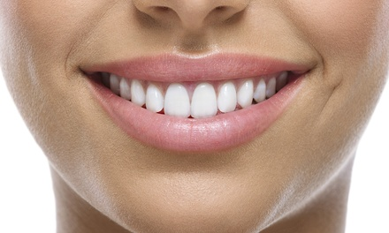 In-Office Zoom Whitening with Optional Sensodyne Treatment and Take-Home Kit at Zoom White Smile (Up to 91% Off)