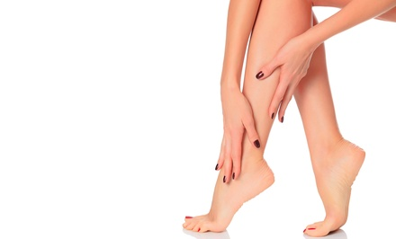 $99 for a Sclerotherapy Consultation and Treatment at North Georgia Vein Institute ($328 Value)