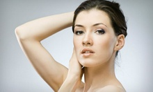 Facial Peels and Skin Treatments at Laser Aesthetic Center (Up to 56% Off). Four Options Available.