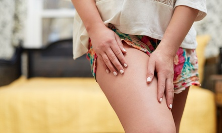 Two or Four iLipo Sessions at Vena - The Varicose Vein Institute (Up to 60% Off)