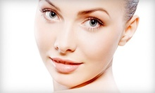 One, Two, or Three Glycolic Facial Peels at Aqua Colour Lounge &amp; Medspa (Up to 63% Off)