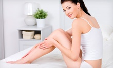 Laser Hair Reduction at Evolve Skin and Laser LLC (Up to 87% Off). Four Options Available.