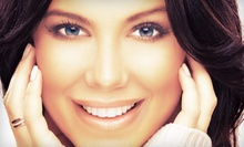 Dental Exam, Cleaning, and X-rays with Optional Teeth-Whitening Treatment at Dentist Columbia SC (Up to 90% Off)