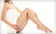 One, Two, or Three Sclerotherapy Treatments at Zen Bella Vita (Up to 78% Off)