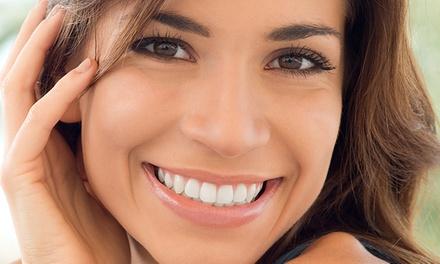 Dentalis — Paço de Arcos: 1, 2, 3 ou 4 facetas dentárias com consultas, check-up e limpeza dentária desde 299€