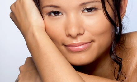 $165 for Three IPL Photofacial Treatments at SkinByDesign ($747 Value)