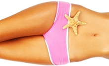 $998 for One Area of Liposonix at New Look New Life Surgical Arts ($2,550 Value)