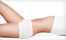One, Three, Six, or Nine VelaShape Body-Shaping Treatments at Renew Esthetics & Spa (Up to 85% Off)