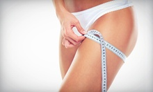 $2,750 for a Cellulaze Laser Cellulite Treatment at Breast and Body Solutions ($5,500 Value) 