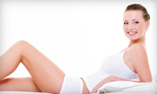 Two or Four Radio-Frequency Skin-Tightening Treatments at Naturallyoung (Up to 78% Off)