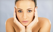 20 or 40 Units of Botox, or 50 Units of Dysport at Aura Skin Spa (Up to 56% Off)