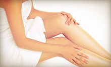 Removal of 3, 6, or 12 Spider Veins at Follicle Hair Salon & Spa (Up to 89% Off)