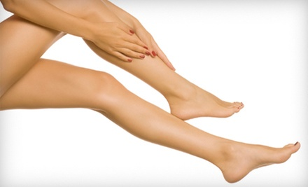 $99 for Spider-Vein Treatment Plan at Soffer Vein Institute ($849 Value)