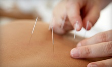 Acupuncture for 1 or 2, or Treatments for Stress, Insomnia, or Pain at Limestone Community Acupuncture (Up to 88% Off)