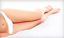 One or Two Laser Spider-Vein-Removal Treatments at Simply Skin Laser Medispa (Up to 68% Off)