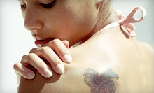 Four Laser Tattoo-Removal Treatments on 4, 6, or 8 Square Inches at GA Aesthetic Med Spa in Alpharetta (Up to 84% Off)