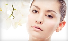 Four, Six, or Eight Medical-Grade Microdermabrasion Treatments at Luminous Lox (Up to 78% Off)