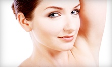 Six Laser Hair-Removal Treatments on a Small, Medium, or Large Area at Gentle Touch Lasers (Up to 86% Off)