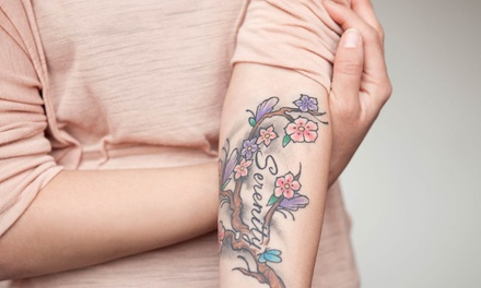 Laser Tattoo Removal for a Small, Medium, or Large Area at M.D. Beauty Labs (Up to 75% Off)