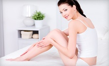 Three or Five Stretch-Mark or Scar-Removal Microdermabrasion Treatments at Skyn Clinic and Apothecary (Up to 83% Off)