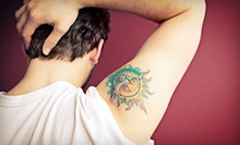 Three Tattoo-Removal Treatments on One Area at Riverside Health & Wellness (Up to 67% Off). Three Options Available.