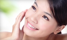 One or Three Chemical Peels at Skin Care by Valerie (Up to 54% Off)