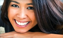 $49 for a Dental Checkup with Exam, X-rays, and a Basic Cleaning at Kris Dental ($305 Value)