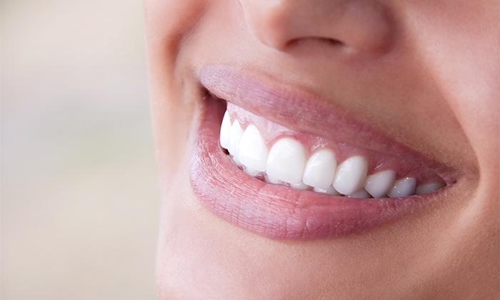 Clínica Dentária do Marquês — Marquês de Pombal: 1 ou 2 sessões de limpeza dentária com destartarização desde 12€