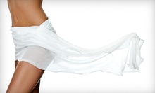 $99 for Five Eurowave Inch-Loss Sessions at Sweet Physique ($250 Value)