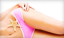 Six Laser Hair-Removal Treatments on a Small or Medium Area at Elements Laser Spa (Up to 73% Off)