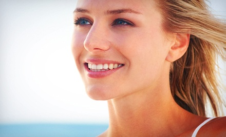Custom Take-Home Teeth-Whitening Kit or Dental-Exam Package at Spring Valley Dental Care (Up to 87% Off)